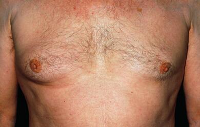 Immagine News - ravenna-tumore-al-seno-negli-uomini.-loncologo-diagnosi-tardive